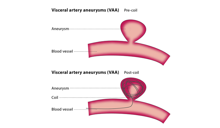 Aneurysm Treatment | Vascular Surgeon Cape Town