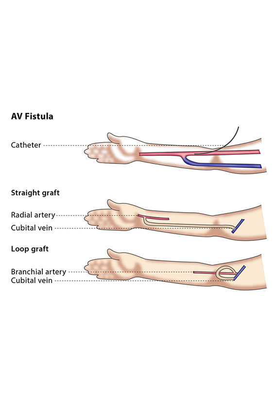 Formation of AV Fistulas | Vascular Surgeon Cape Town
