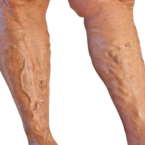 Varicose Veins | Vascular Surgeon Cape Town