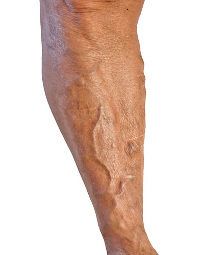 Varicose Veins Treatment Cape Town | Dr JP Mouton